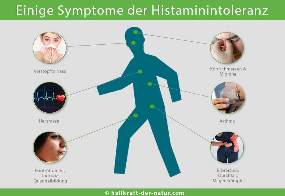 Symptome einer Histaminintolleranz