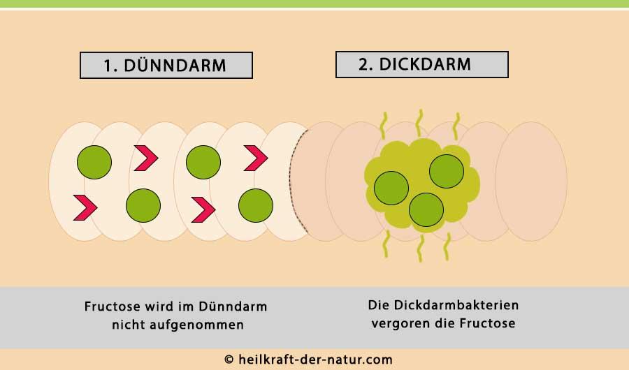 Dünndarm-Dickdarm bei Fructose